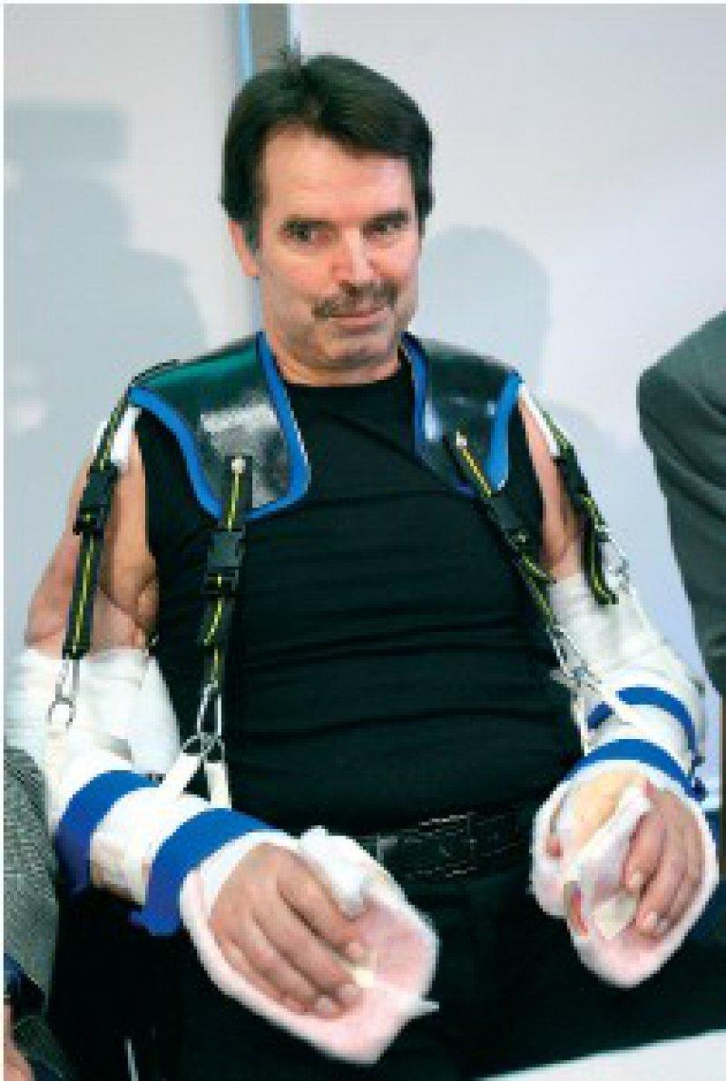 Spürt schon ein leichtes Kribbeln im Unterarm: Der 54-jährige Karl Merk ist zurzeit aber noch auf ein eigens konstruiertes Trägergestell angewiesen. Foto: dpa