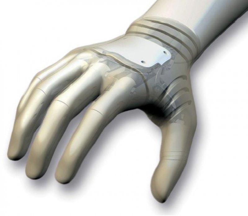 Prothesen: Direkte Nervensteuerung soll möglich werden. Foto: Otto Bock
