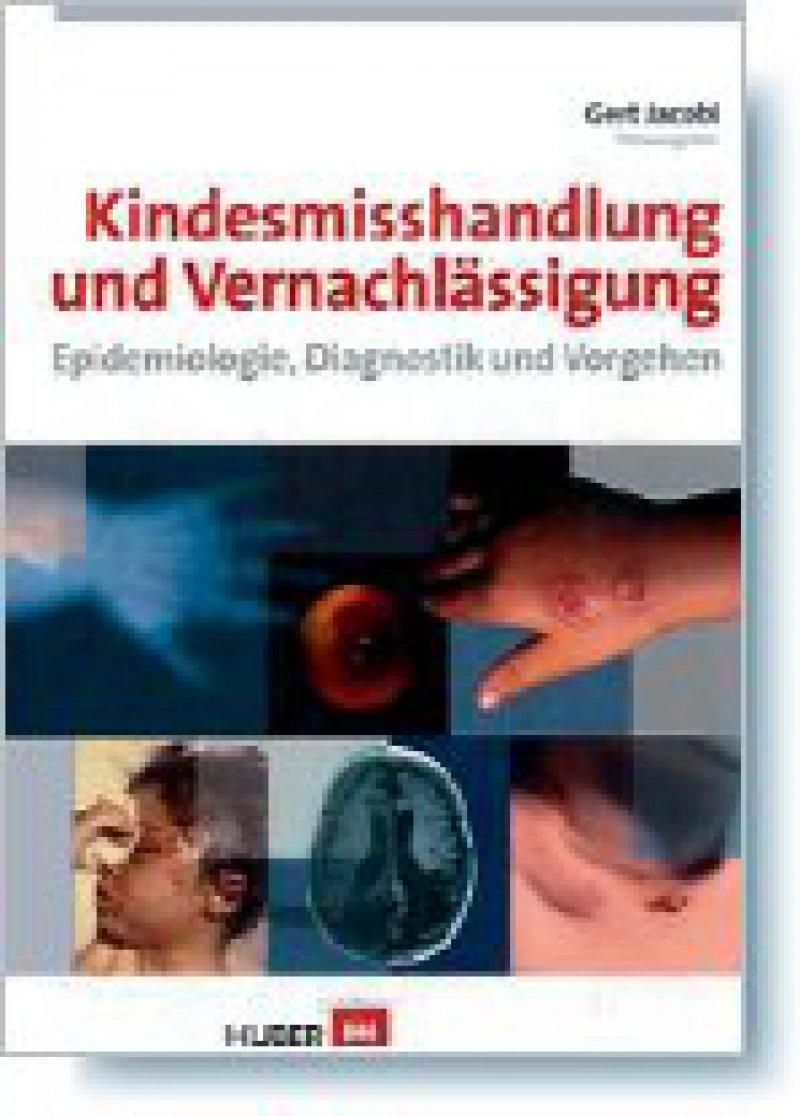 Gert Jacobi (Hrsg.): Kindesmisshandlung und Vernachlässigung. Epidemiologie, Diagnostik und Vorgehen. Huber, Bern, 2008, 528 Seiten, gebunden, 79,95 Euro
