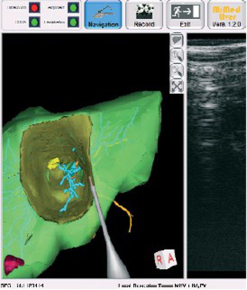 Ausschnittsvergrößerung aus dem Navigationssystem. Sichtbar sind das patientenindividuelle 3-D-Modell der Leber mit eingezeichneter Resektionslinie sowie die aktuelle Position des navigierten Dissektors, um so mit dessen Spitze genau der geplanten Resektionslinie folgen zu können.