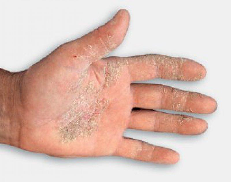 Hyperkeratotische Form des chronischen Handekzems. Foto: Basilea-Pharmaceutica