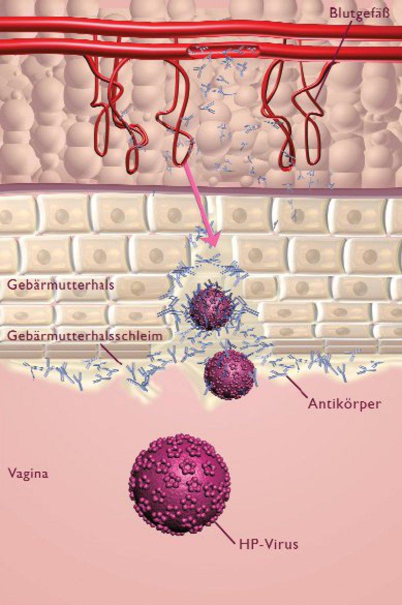 Durch Sekretion von Antikörpern in das Vaginalsekret und deren Transsudation aus dem mesenchymalen Gewebe in die unteren Schichten des Zervixepithels kann die Neutralisierung von HPVPartikeln vor der Infektion der Zelle erfolgen. Zwischen der Konzentration der Antikörper im Serum und dem Zervikovaginalsekret besteht ein linearer Zusammenhang.