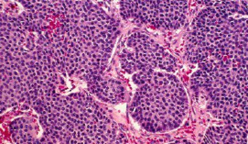 Mikroskopaufnahme eines Pankreaskarzinoms Foto: picture-alliance/OKAPIA