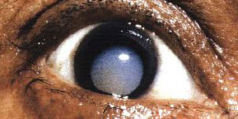 Getrübte Augenlinse bei einer Kataraktpatientin. Foto: dpa