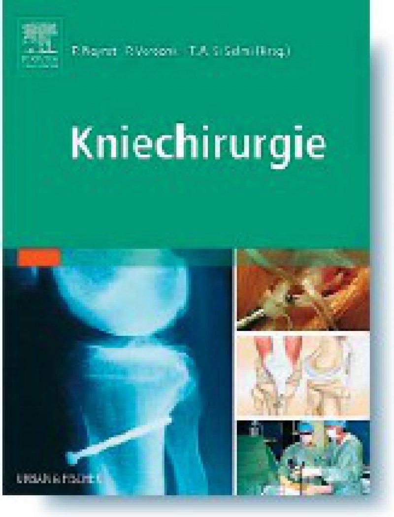 Philippe Neyret, Peter Verdonk, Tarik Ait Si Selmi: Kniechirurgie. Urban & Fischer, München 2008, 173 Seiten, gebunden, 99,95 Euro