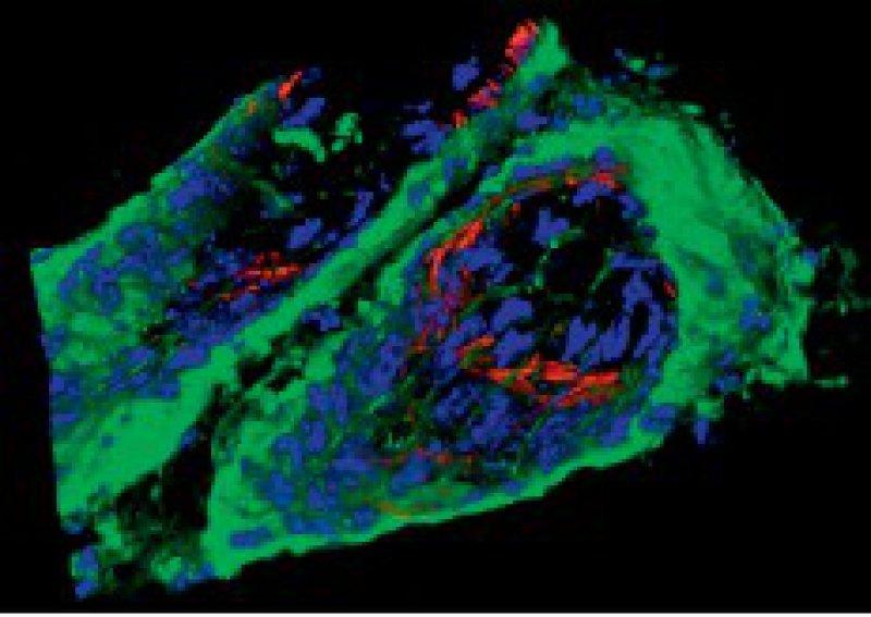 3-D-Rekonstruktion optischer Schnitte der Haut einer Maus