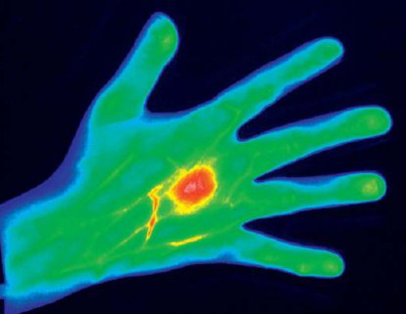 Etwa 60 Sekunden nach der intravenösen Injektion zeigt sich eine umschriebene Kontrastmittelanreicherung am Grundgelenk des rechten Mittelfingers. Abbildung: mivenion