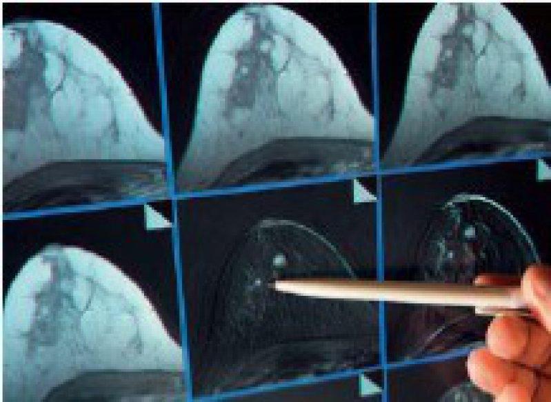 Bildschirmdarstellung einer Magnetresonanzmammografie. Foto: dpa