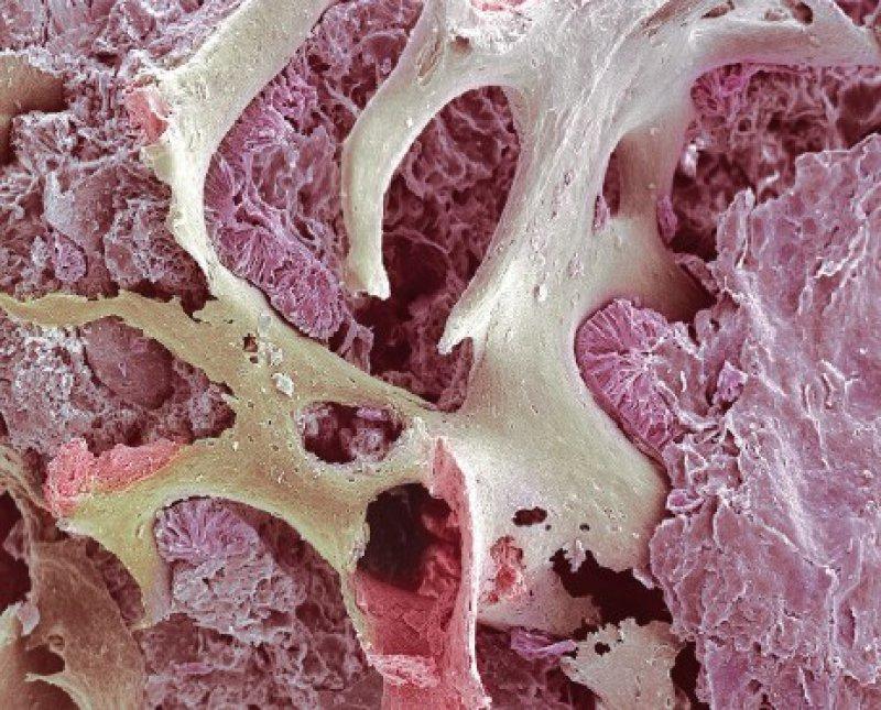 Strukturdefekte eines osteoporotischen Knochens sind besonders gut mithilfe der 3-DElektronenmikroskopie zu erkennen. Foto: Steve Gschmeissner/SPL/Agentur Focus