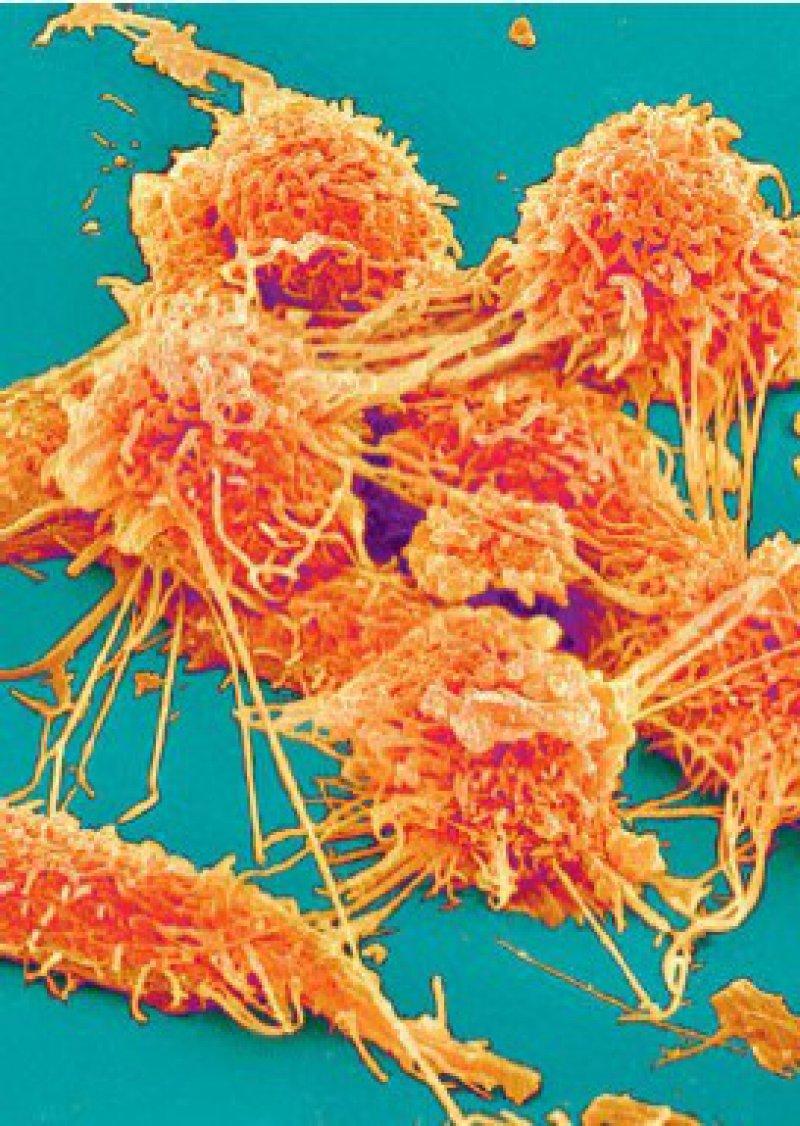 Darmkrebszellen in der elektronenmikroskopischen Aufnahme Foto: SPL/Agentur Focus