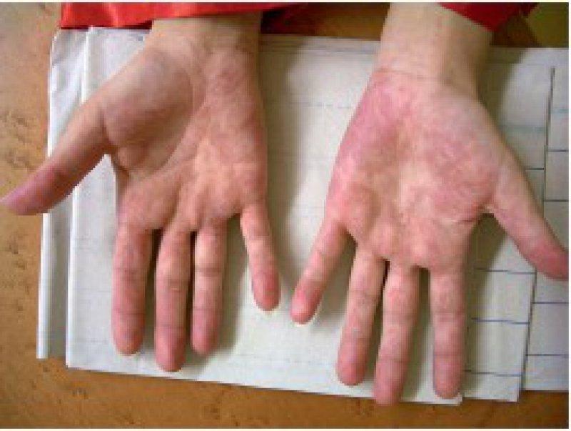 Palmarerythem bei einer Patientin mit systemischem Lupus erythematodes Foto: medizinwelten.de; Dr. R. Feik, Klinikum Achern