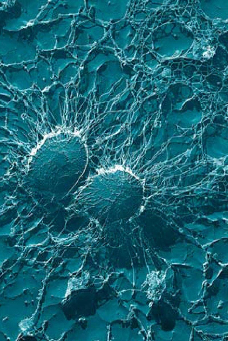 Staphylococcus aureus unter dem Elektronenmikroskop. Foto: usda ars emu
