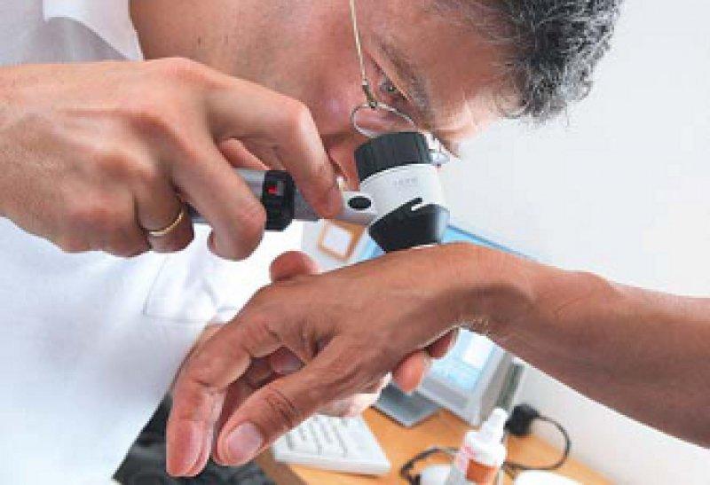 Früherkennung: 60 Prozent der Untersuchungen auf Hautkrebs fanden in Hausarztpraxen statt, 40 Prozent bei Hautärzten. Foto: dpa
