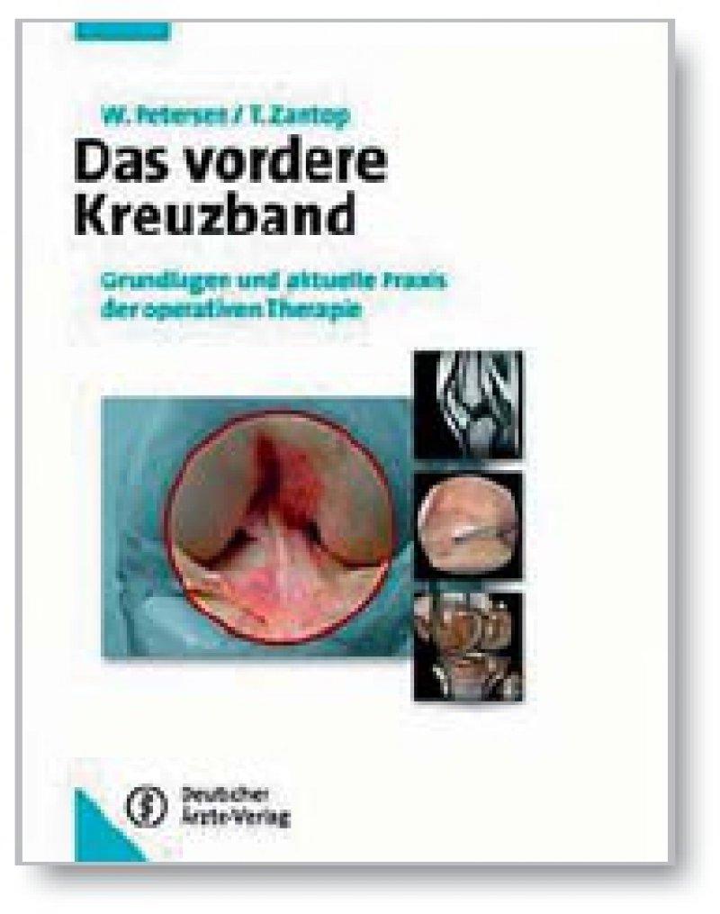 Wolf Petersen, Thore Zantop: Das vordere Kreuzband. Deutscher Ärzte-Verlag, Köln 2009, 250 Seiten, gebunden, 149 Euro