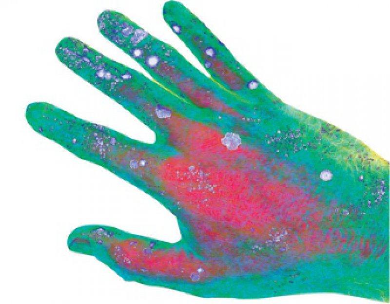 Bakteriell kontaminierte Hände (hier in der Computeranimation) gelten als Hauptübertragungsweg nosokomialer Infekte. Foto: sciene photo library