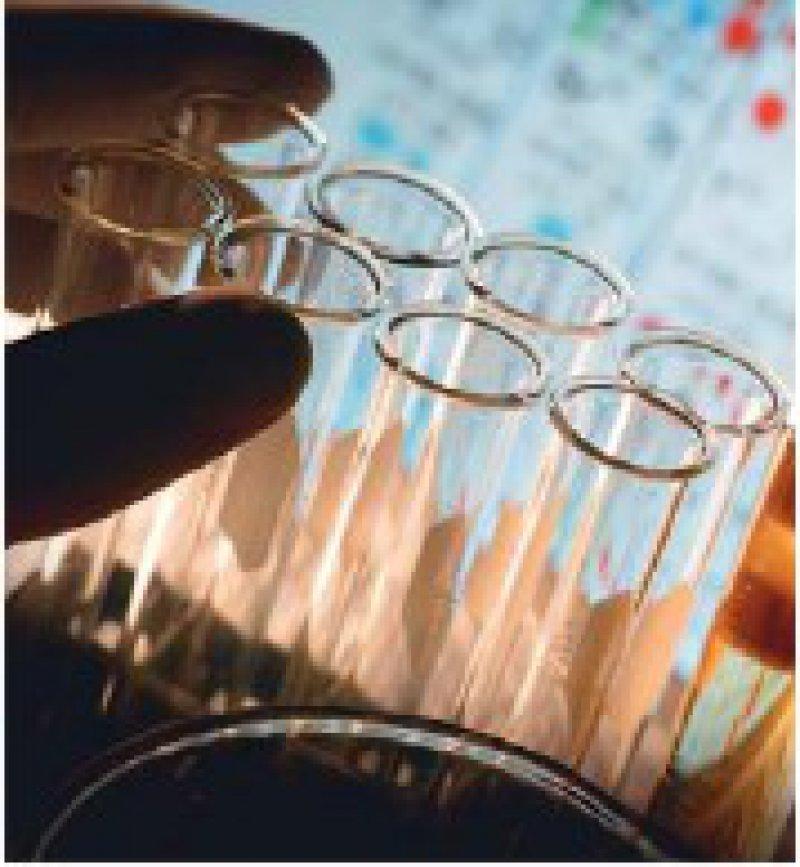 Abkürzungen für Laborwerte sind für die meisten Patienten schwierig zu verstehen. Foto: iStockphoto