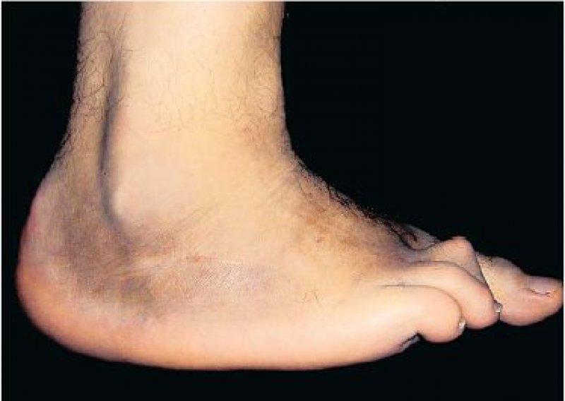 Der Charcot-Fuß im fortgeschrittenen Stadium ist gekennzeichnet durch stark deformierende Veränderungen mit eingeschränkter Belastbarkeit. Foto: Kirchheim-Verlag