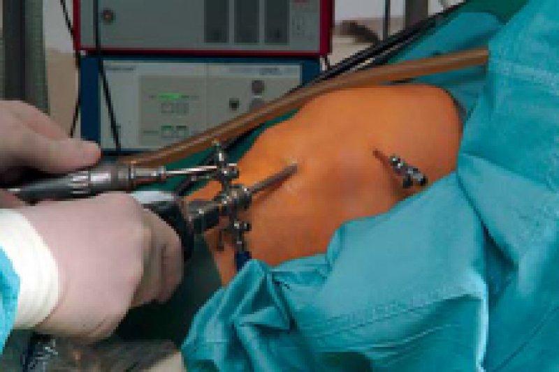 Der G-BA erteilt gezielte Aufträge zur sektorenübergreifenden Qualitätssicherung – etwa bei Knieoperationen. Foto: dpa