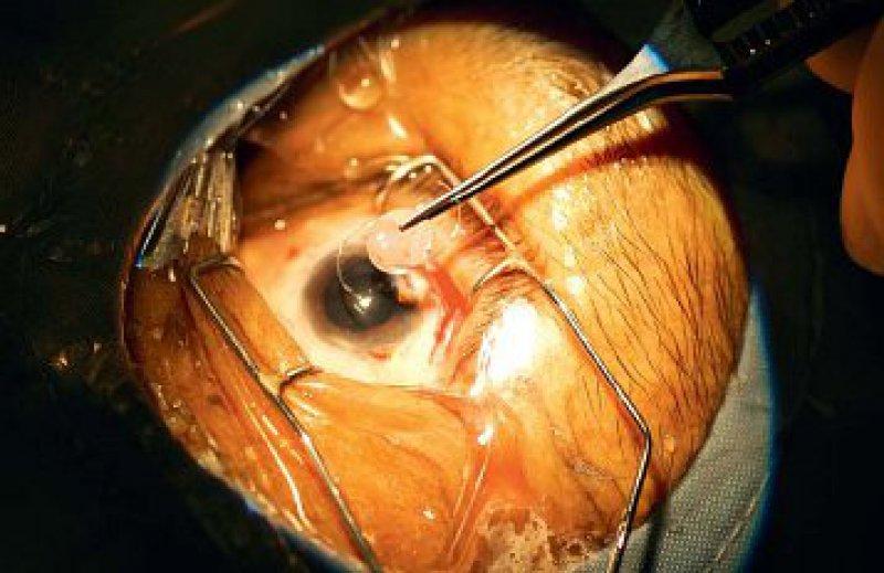 Einsetzen einer künstlichen Linse bei einem Kataraktpatienten. Auch die Presbyopie wird häufig auf diese Weise korrigiert. Foto: vario images