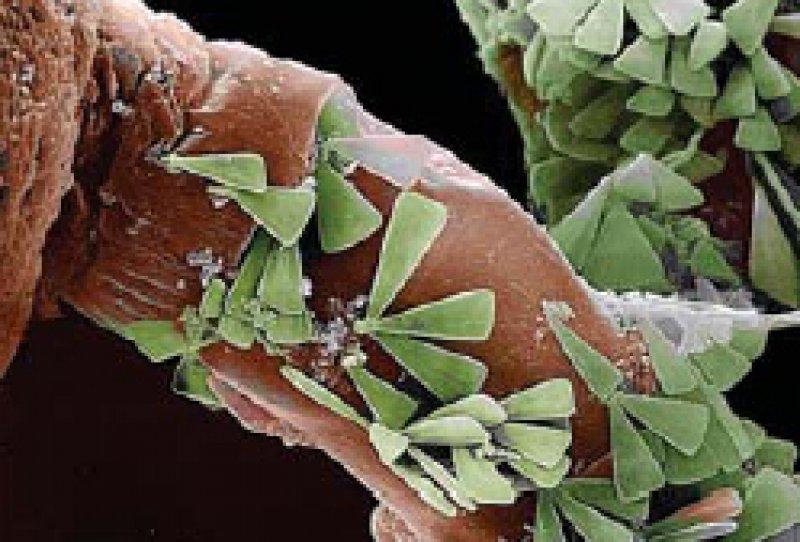 Mikroaufnahme von Kieselalgen: Ein Wald grüner einzelliger Algen wogt auf dem braunen Stiel des Hohltiers. Die fächer förmigen Mikroalgen weisen eine eigenartige, glasähnliche Zellwand auf. Foto: dpa