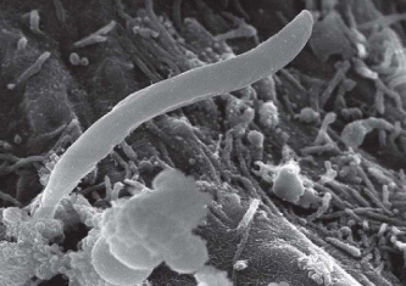 Abbildung 1: Die rasterelektronenmikroskopische Aufnahme zeigt einen Plasmodium-Sporozoiten auf einer Leberzelle. Sporozoiten werden von Anopheles- Stechmücken auf den Menschen übertragen und dringen in dieser Form in die Leberzellen ein. Foto: Dr. rer. nat. Volker Brinkmann, MPI für Infektionsbiologie