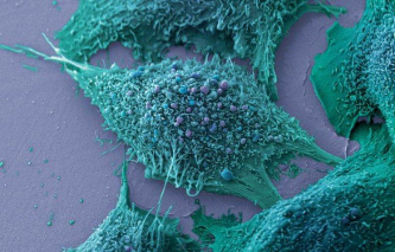 Lungenkrebszellen im Rasterelektronenmikroskop. Foto: vario images