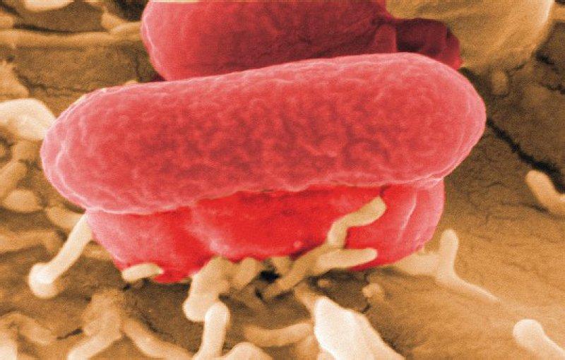 Der Feind im Darm: Wie enterohämorrhagische Escherichia-coli-Bakterien sich an der Darmwand festsetzen. Foto: Manfred Rohde/HZI
