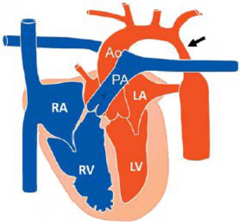 Die präduktale und postduktale Isthmusstenose kann beim Neugeborenen akut in der postnatalen Periode mit kritischer Unterversorgung der unteren Körperhälfte und mit einer Druckbelastung des linken Ventrikels verlaufen.