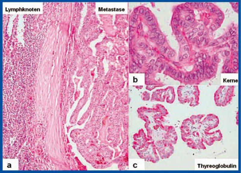 Abbildung 1: histologische und immunhistologische Bilder a: tumorinfiltrierter Lymphknoten b: typische Milchglaskerne mit Kaffeebohnenkerben und dachziegelartiger Überlappung c: immunhistologischer Nachweis von Thyreoglobulin
