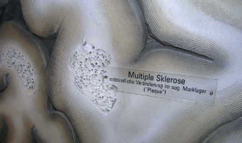 Entzündliche Herde im Marklager des Gehirns werden zur Illustration der multiplen Sklerose in einem begehbaren Organmodell gezeigt. Foto: http://begehbare-organe.de/modelle/gehirnmodell.html