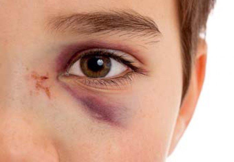 Opfer von Gewalt suchen oft Hilfe beim Arzt. Dieser kann auf die Angebote des Weißen Rings hinweisen. Foto: Fotolia