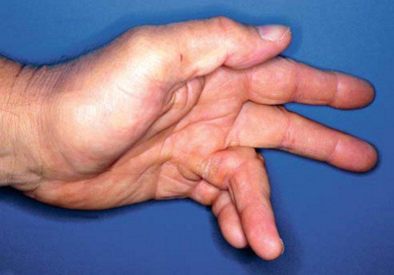 Handinnenfläche eines Patienten mit der Beugekontraktur der Finger durch Verhärtung und Schrumpfung der Sehnenplatte in der Hohlhand. Foto: picture alliance