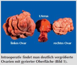 Intraoperativ findet man deutlich vergrößerte Ovarien mit gyrierter Oberfläche