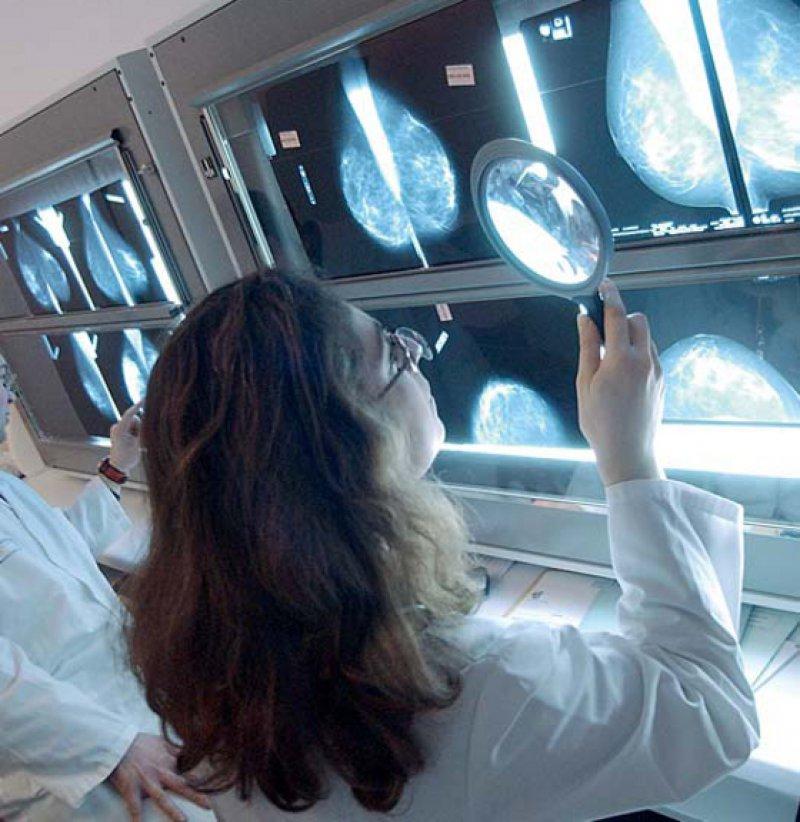 Trotz Leitlinien: Umsetzung und Anpassung an den individuellen Fall erfordern in den Tumorboards immer noch große praktische Erfahrung und Expertise. Foto: Your Photo Today