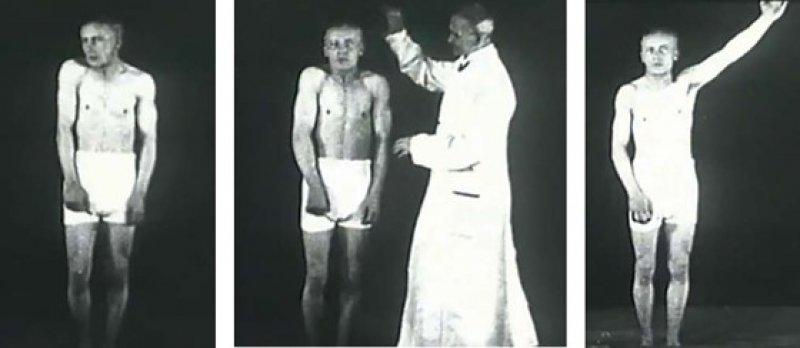 Ausschnitte aus einem Lehrfilm von 1917: Max Nonne suggeriert einem traumatisierten Soldaten unter Hypnose, nicht zittern zu müssen.