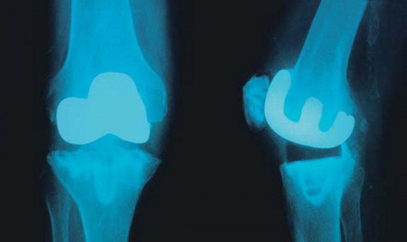 Je mehr, desto besser? Bei Knietotalendoprothesen ist für die Richter der Zusammenhang von Menge und Qualität belegt. Foto: picture alliance