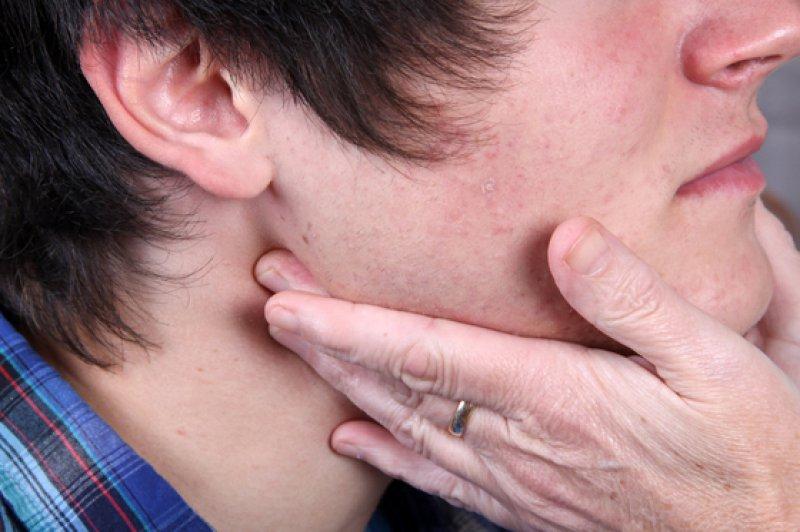 geschwollenen lymphknoten