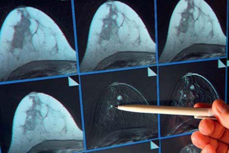 Die hochwertige Diagnostik und Therapie stehen nach Meinung der Gynäkologen auf dem Spiel. Foto: dpa