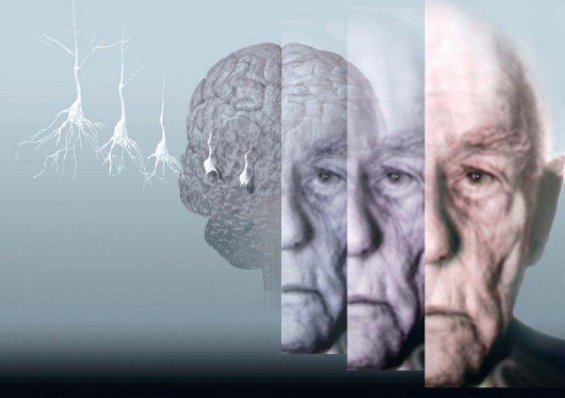 Die Zahl der Demenzkranken wird von derzeit 1,2 Millionen auf 2,6 Millionen im Jahr 2050 ansteigen, sofern kein Durchbruch in der Therapie erfolgt. Die Deutsche Alzheimer Gesellschaft fordert daher einen Nationalen Demenzplan. Foto: Hans-Ulrich Osterwalder SPL Agentur Focus