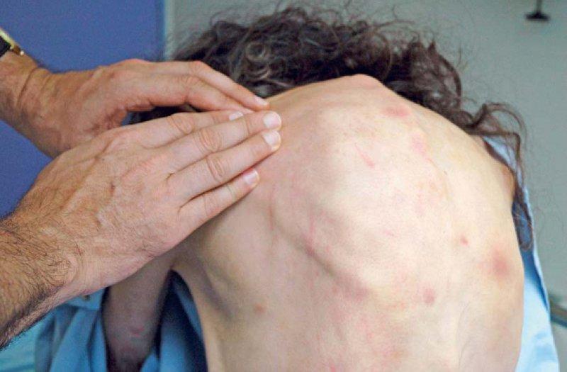 Spuren häuslicher Gewalt: Eine Patientin wird mit Hämatomen und erheblichem Untergewicht in der Notaufnahme eines Krankenhauses untersucht. Über längere Zeit wurde sie unterversorgt und geschlagen. Foto: Your Photo Today