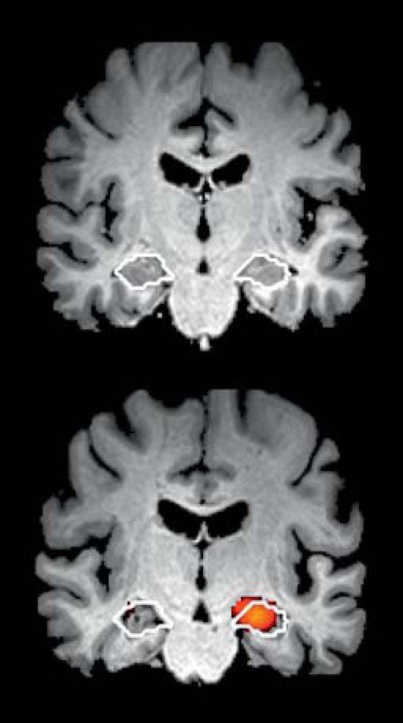 Oben: Koronare Ansicht der Hirnsubstanz einer gesunden 76-jährigen Frau. Der Hippocampus wurde vom Computer automatisch detektiert (weiße Kontur). Hier zeigt sich keine Verminderung der grauen Substanz. Unten: Hirnsubstanz einer 80-jährigen Patientin mit einer frühen Alzheimer- Erkrankung. Die volumetrische Analyse ergibt eine signifikante Verminderung der grauen Substanz im Bereich des Hippocampus (in Farbe). Quelle: Jung Diagnostics