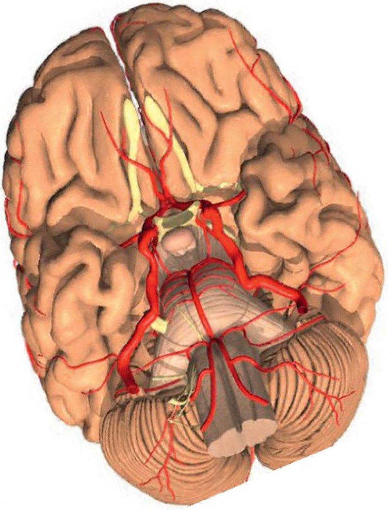 Das Anfangssegment der Arteria carotis interna ist eine Prädilektionsstelle für die Bildung atherosklerotischer Plaques. Foto: SPL/Agentur Focus