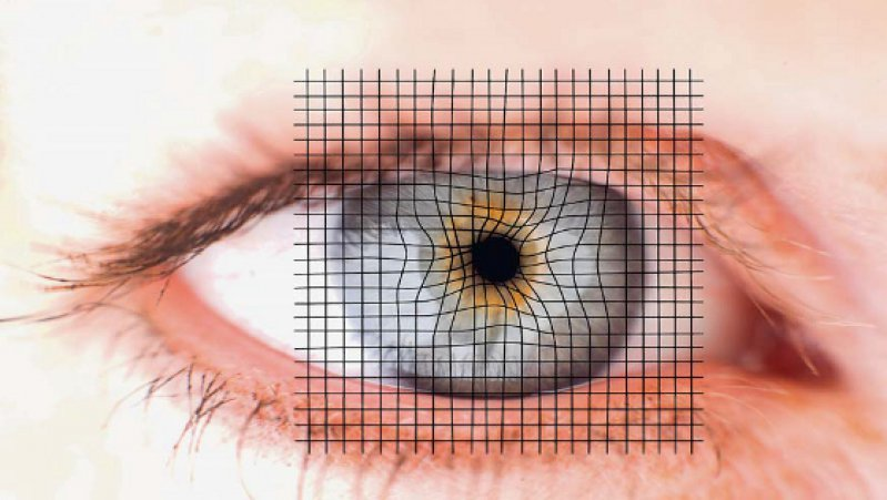 Mit dem Amsler-Gitter-Test können Patienten selbst testen, ob Störungen im zentralen Gesichtsfeldbereich des Auges vorliegen. Es ist die einfachste Methode zur Früherkennung der altersbedingten Makuladegeneration. Foto: Your Photo Today