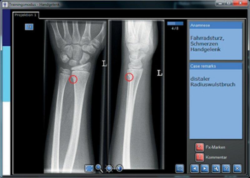Zeitpunkt und Tempo des Trainings lassen sich beim E-Learning-Programm zur Röntgenbefundung individuell anpassen.