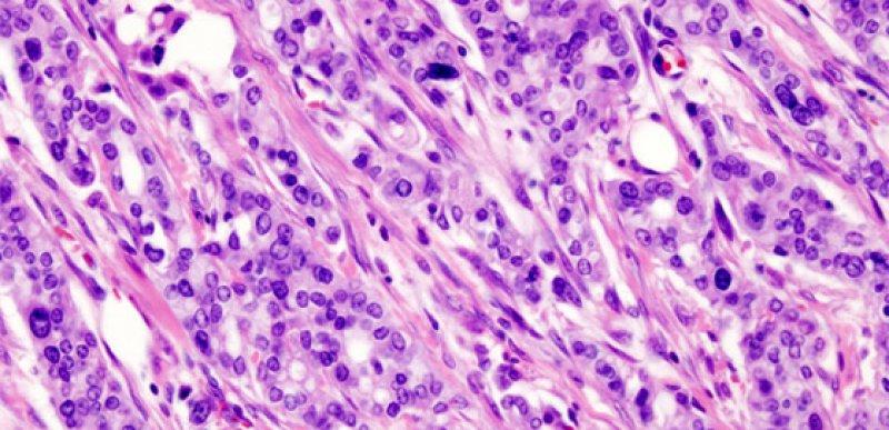 Pankreaskarzinom