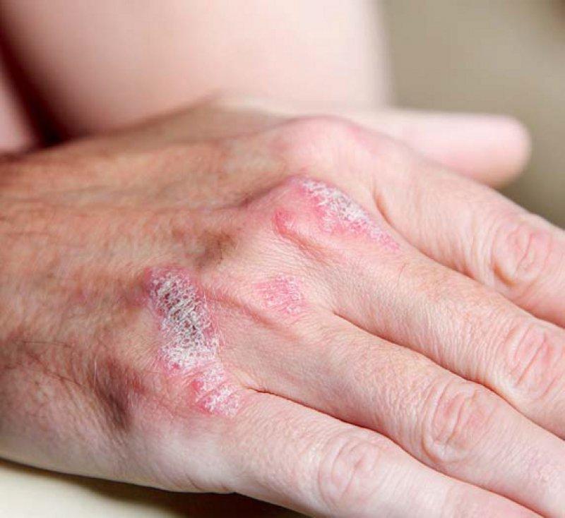 Psoriasis: Läsionen an den Händen sind häufig schmerzhaft, da sie sehr trocken, oft infiziert und rissig sind. Foto: Fotolia/Farina3000
