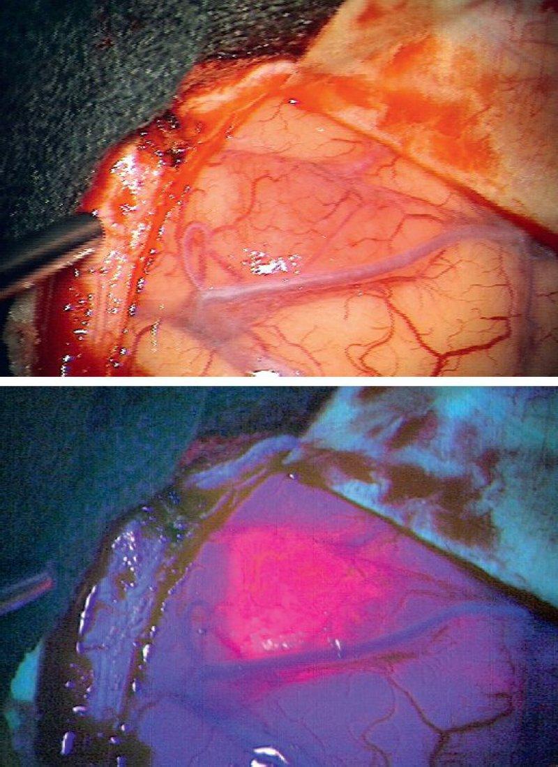 Tumormarkierung während der Operation: Unter normalem Licht ist das Tumorgewebe nur schwer, unter blauem Licht hingegen präzise erkennbar. Fotos: Stummer, Klinik für Neurochirurgie am Universitätsklinikum Münster