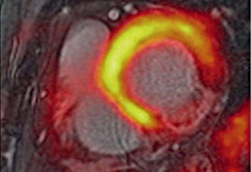 Akuter Myokardinfarkt im Versorgungsgebiet des Ramus circumflexus: Das Gebiet der verminderten Glukoseutilisation ist im PET/MRT deutlich ausgeprägter.