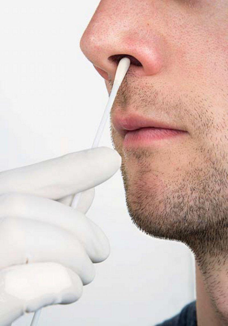 Screening von MRSA auf der Nasenschleimhaut mit einem speziellen Abstrichtupfer. Foto: Agentur Focus