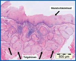 Histopathologischer Befund
